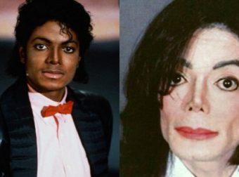 Στο φως η νεκροψία του Michael Jackson: Χωρίς μαλλιά ‑ Τατουάζ σε χείλη, φρύδια