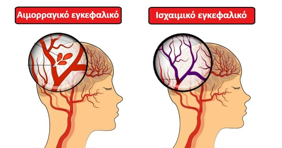Εγκεφαλικό: Ποιές τροφές αυξάνουν τον κίνδυνο – Πώς συνδέονται τα τρόφιμα με τα διαφορετικά είδη εγκεφαλικού