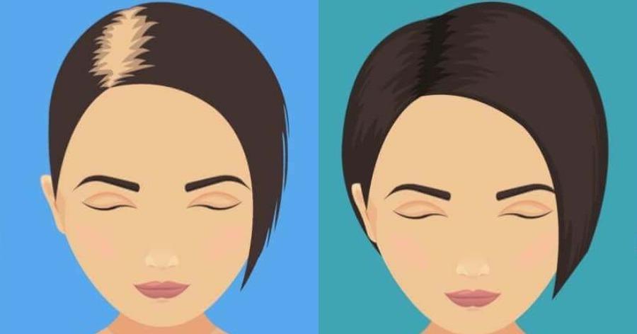 Πείτε αντίο στην τριχόπτωση και δυναμώστε τα μαλλιά σας απλά προσθέτοντας 3 υλικά μέσα στο σαμπουάν σας