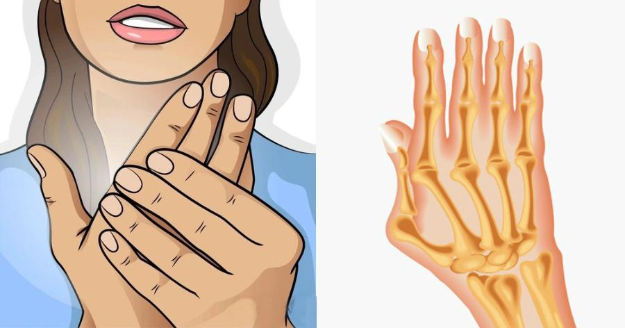 Ρευματοειδής αρθρίτιδα: Ποια τα συμπτώματα και τι πρέπει να ξέρουμε για έγκαιρη θεραπεία της αυτοάνοσης νόσου