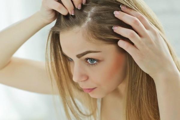 Χάνετε τα μαλλιά σας; Αυτή η τροφή θα σας σώσει – Ομορφιά & Υγεία